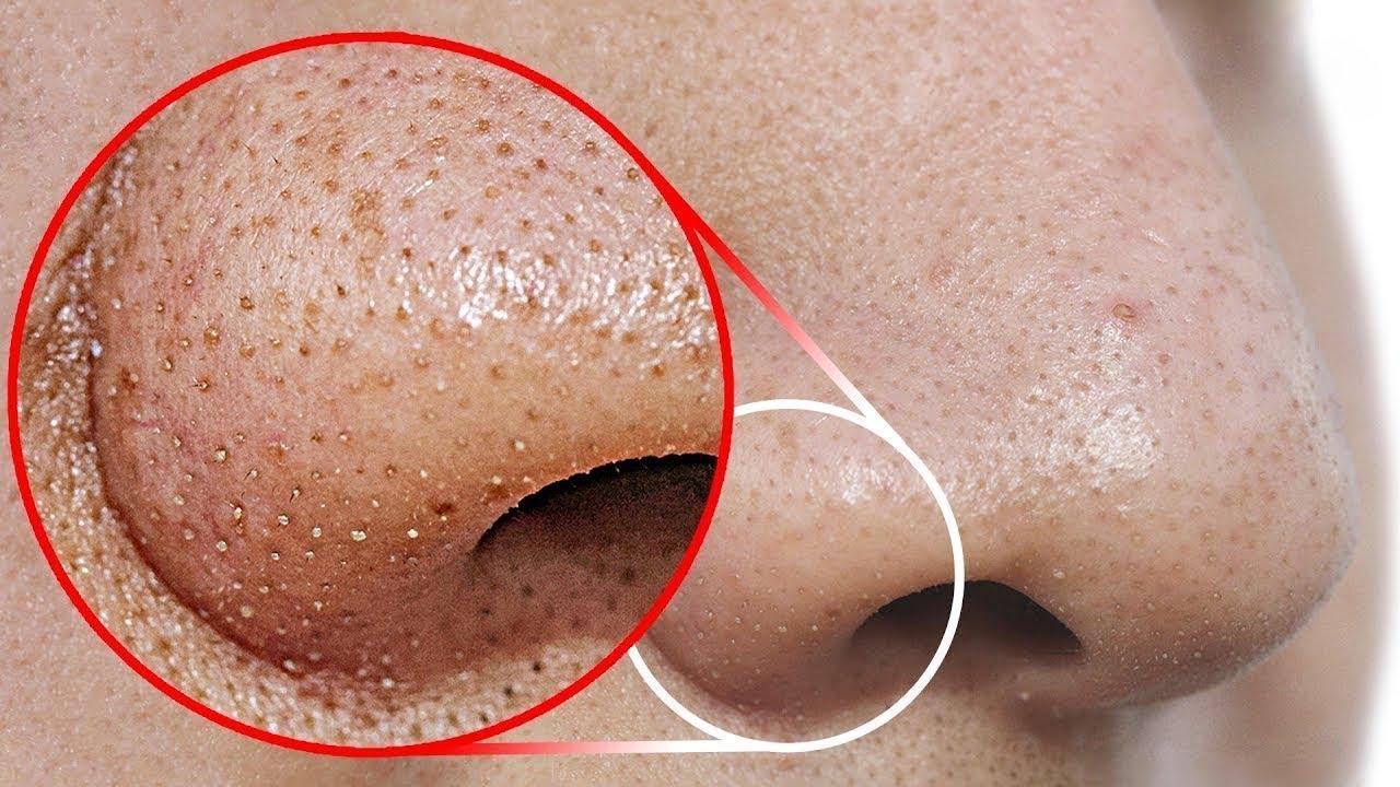 point noir nez